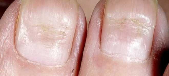 Линии борейля на ногтях борозды на ногтевой пластине