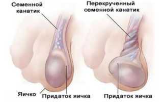 Боль в яичке у мужчин