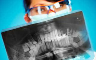 Вредна ли ортопантомограмма