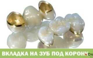 Зубные вкладки в стоматологии