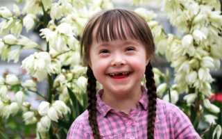 Почему рождаются дети с синдромом дауна