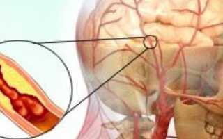 Тромбоэмболия сосудов головного мозга