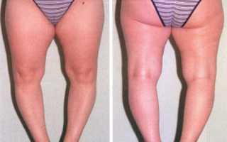 Ообразные ноги варусная деформация у ребенка и взрослого