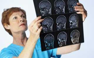 Энцефалиты (воспаление мозга)