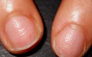 Псориаз ногтей на руках и ногах