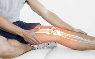 Тендиниты мышц и суставов