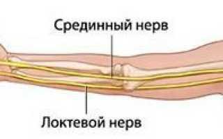 Синдром запястного канала (туннельный синдром)
