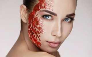 Гемангиома внутренних органов кости на коже