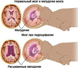 Можно ли вылечить внутричерепное давление у грудничка и почему у малыша повышается внутричерепное давление - причины, симптомы и лечение