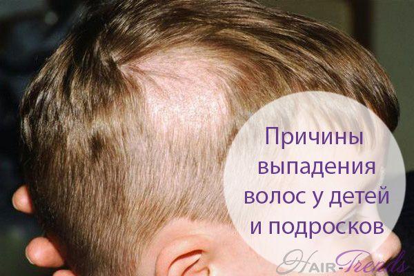 Почему у ребенка выпадают волосы на голове или сильное выпадение волос у детей - основные причины и что делать
