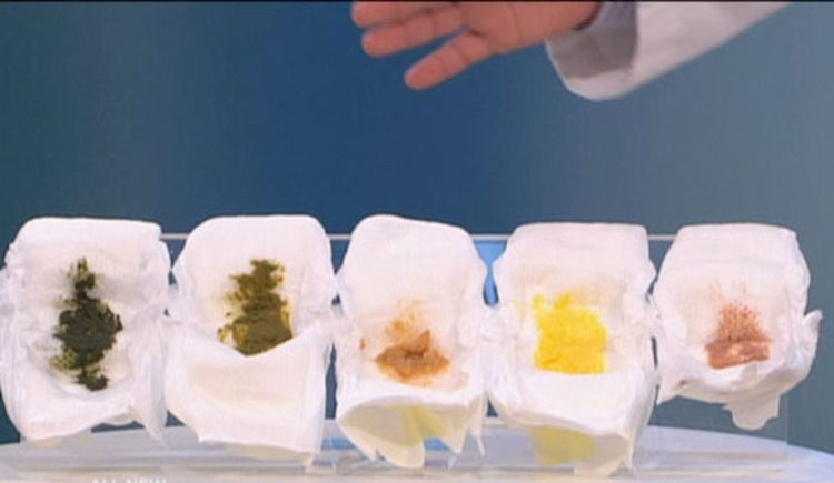 Какие какашки должны быть у грудничков: консистенция, частота, цвет и что является поводом для беспокойства