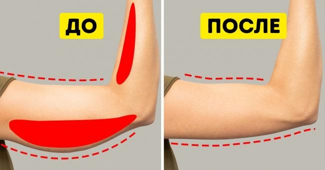 Упражнения для похудения рук: ТОП упражнений для женщин, которые помогут сжечь жир на руках